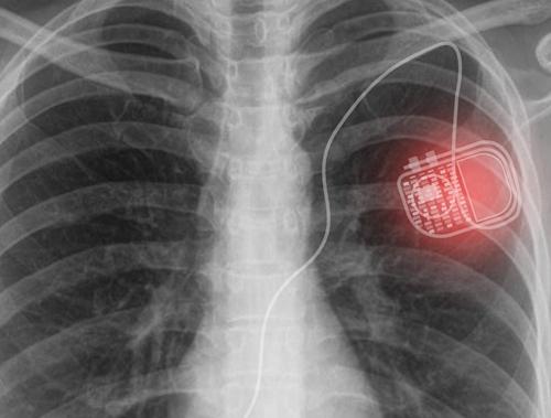 无线Micro LED系统,助力医疗植入物长期使用